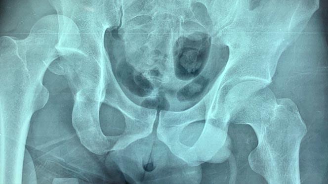 Tratamento cirúrgico fraturas do acetábulo e da pelve